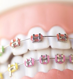 A mouth mold that has traditional braces affixed and colorful bands wrapped around each bracket