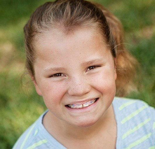 Little girl with phase 1 braces
